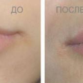 Бьютификация губ